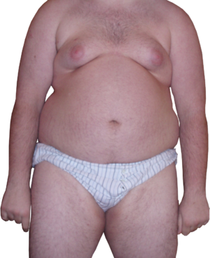 300px-Obese_Man_-_Front_View_-_Transparent6