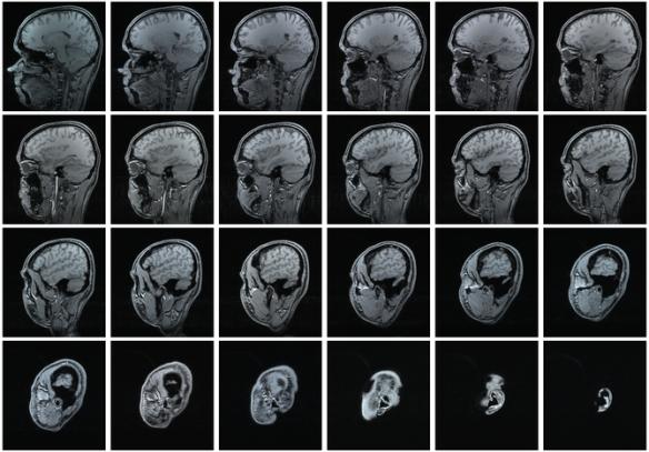670px-MRI