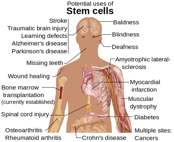 Stem_cell_treatments.svg