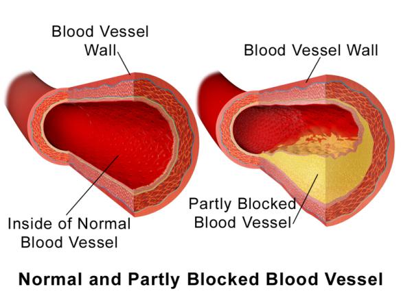 Blausen_0052_Artery_NormalvPartially-BlockedVessel