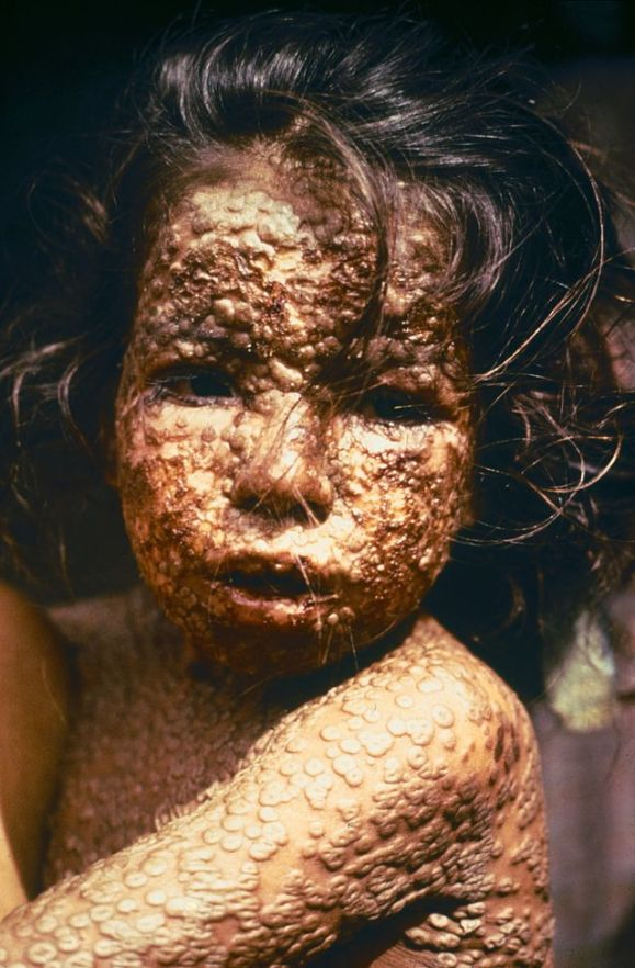 640px-Child_with_Smallpox_Bangladesh