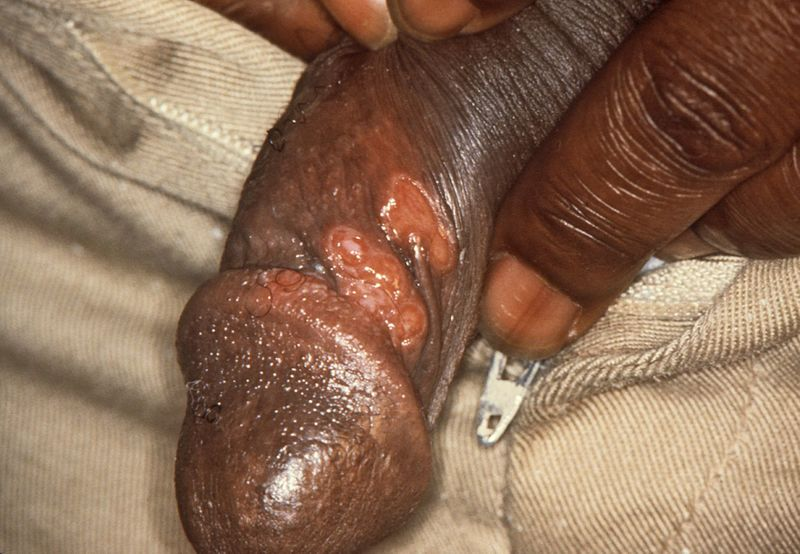 Chancres_on_the_penile_shaft_due_to_a_primary_syphilitic_infection_caused_by_Treponema_pallidum_6803_lores.jpg