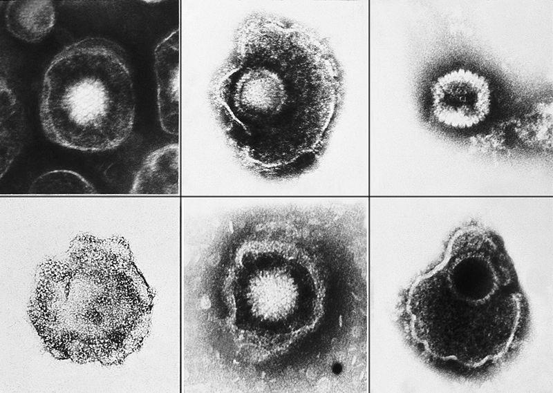800px-Herpesviridae_EM_PHIL_2171_lores.jpg